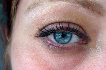 dark eye circle
